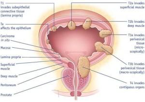 Anatomia taka p.m. - cecha naciekania 1