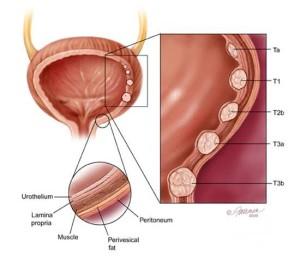 Anatomia taka p.m. - cecha naciekania